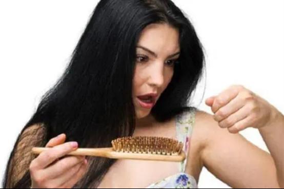 女人掉头发厉害怎么办