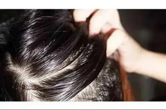 脱发的原因有哪些