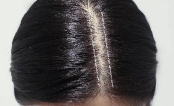 女性掉头发的原因