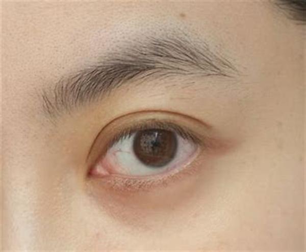 女人眉毛脱落修复