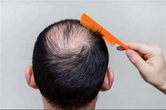 不剃发植发第二天可以洗头吗