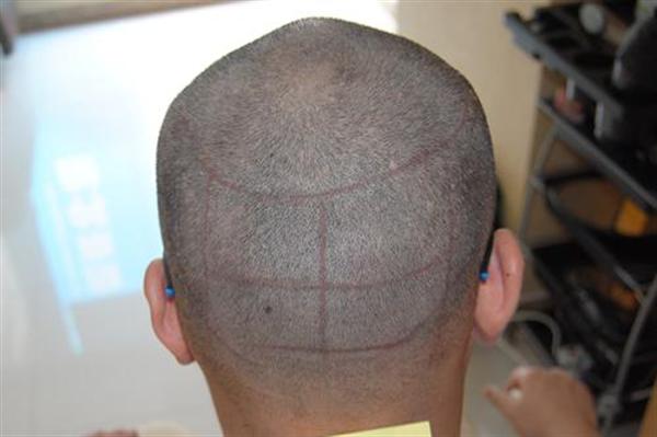 疤痕毛发移植价格