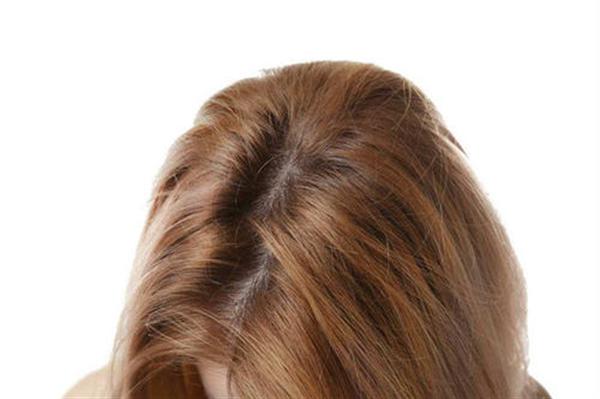 头发加密手术