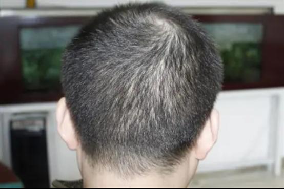 男生可以不剃发植发吗