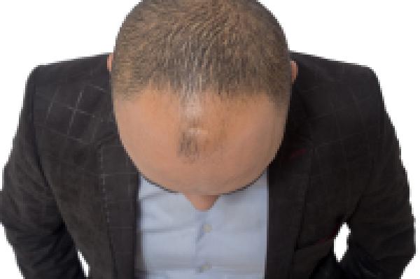 巨量毛发移植是什么?