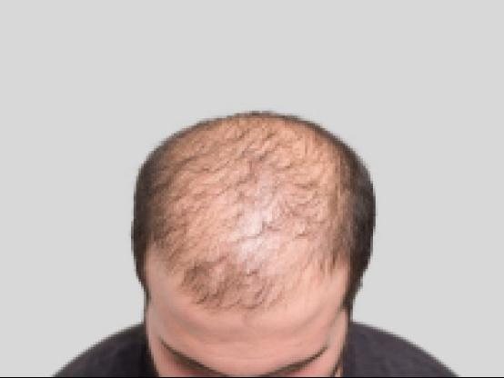 鬓角两边头发少怎么办