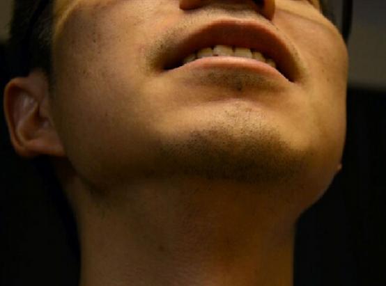 胡须种植可靠吗