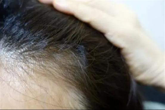 头发有疤痕能植发吗
