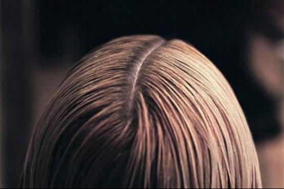 植发剃发和不剃发价格的区别