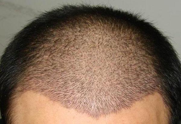 疤痕可以植发吗