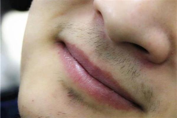 胡须种植效果怎么样