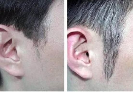 鬓角掉头发怎么回事应该怎么办