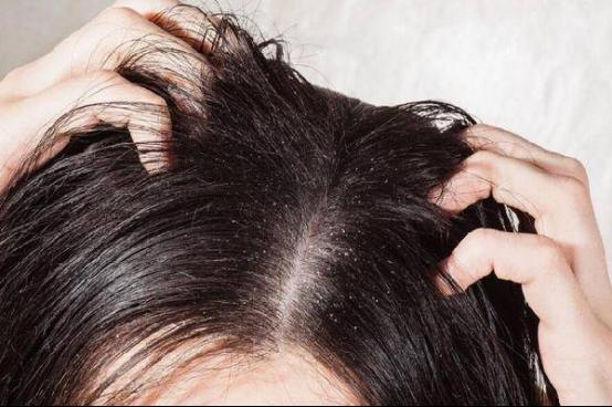 头发加密好吗