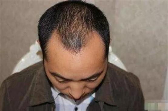 鬓角开始脱发是怎么办