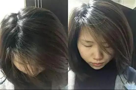 植发分层不剃发是什么样的