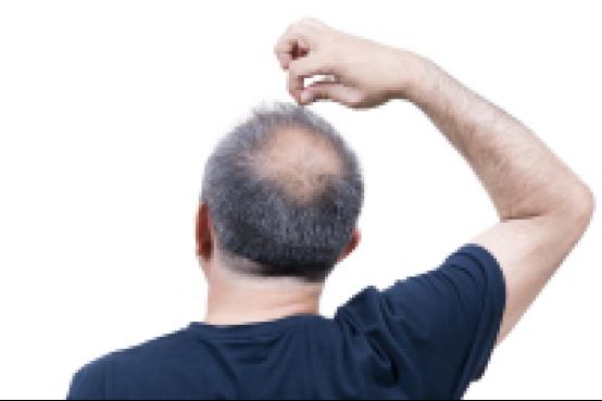 植发后还会脱落吗?能够维持多久