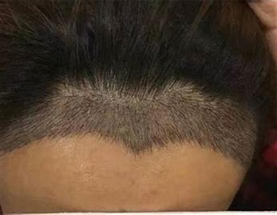 巨量毛发移植费用多少钱