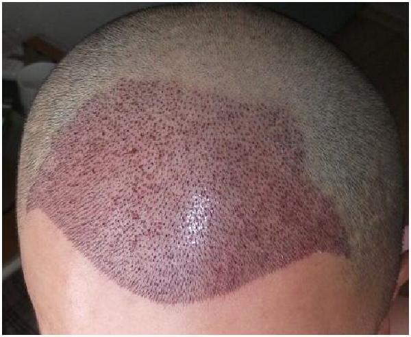 疤痕种植手术