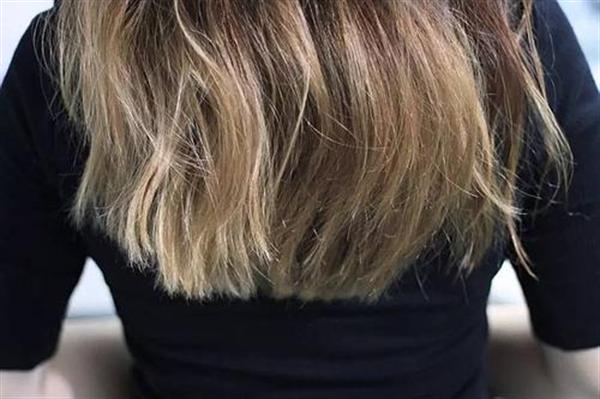 毛发植发种植技术