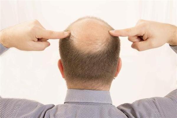 巨量毛发种植技术怎么样