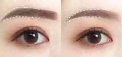 睫毛增长方法有哪些,最
