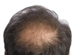 有疤痕体质的人适合植发