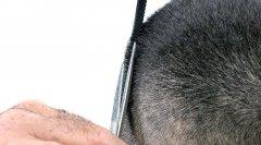 不剃发植发技术到底是什