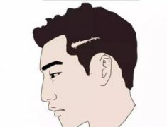头皮疤痕多久可以植发,