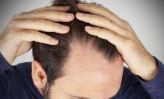 发际线秃了一块怎么办,进行发际线种植手术合适吗