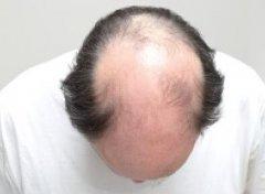 秃头还能植发吗,有什么