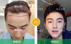 哪家医院种植头发好,应该如何进行选择呢