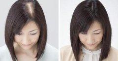种植头发靠谱吗有效果吗,术后又该如何进行护理呢